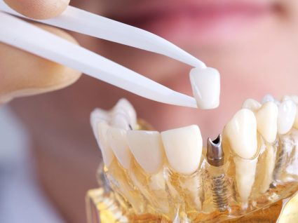 Implante dentário na Zona Norte de SP