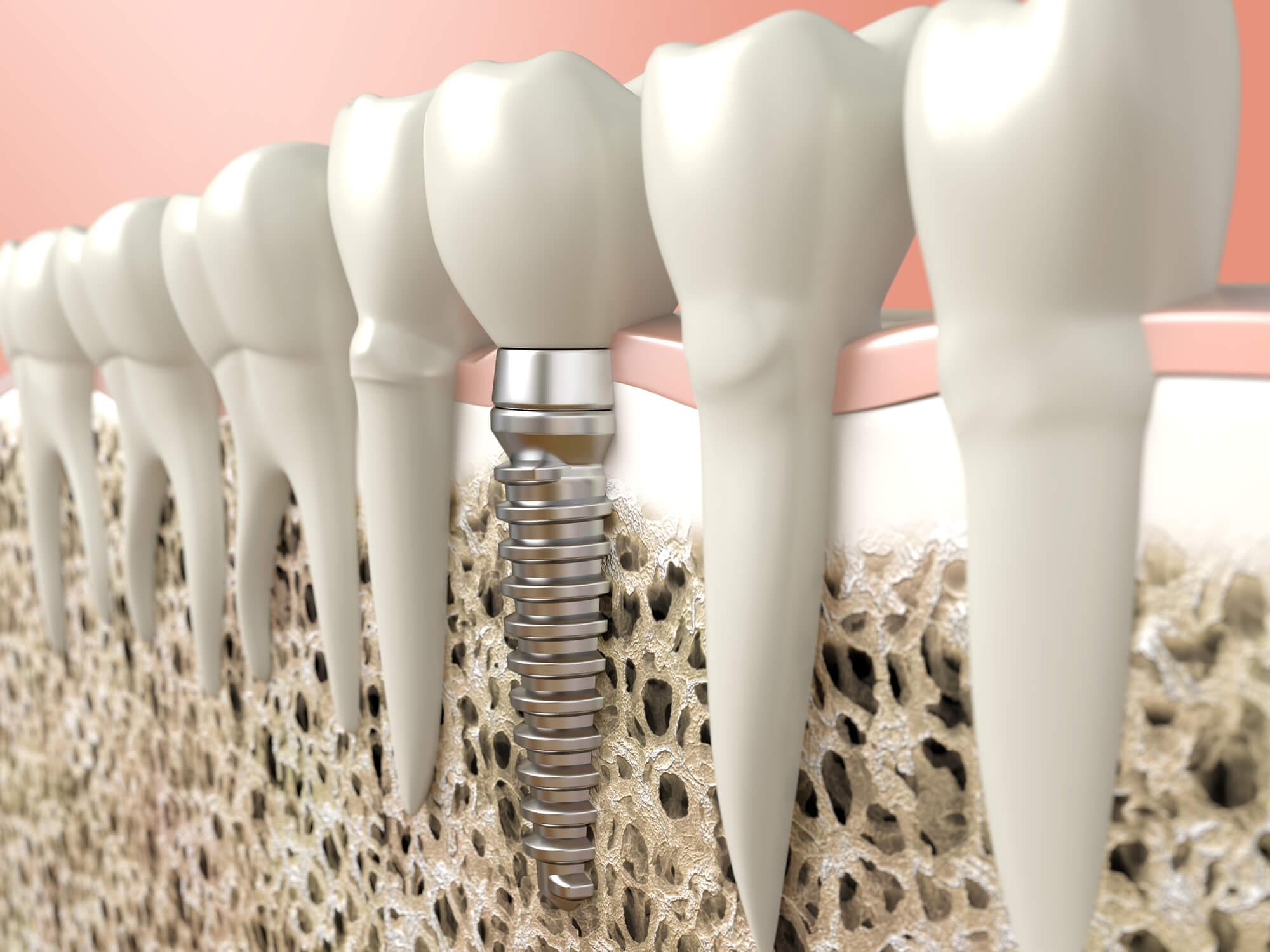 Implante dentário na Vila Maria SP