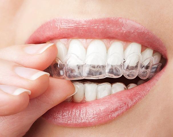 Clareamento Dental a Laser na Zona Norte de SP