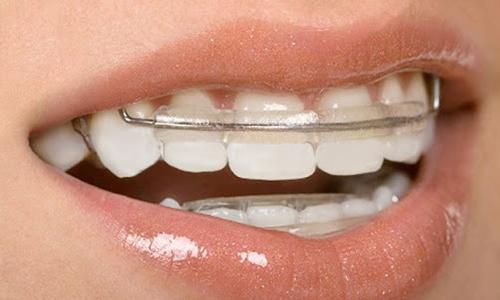 Ortodontia na Zona Norte de SP
