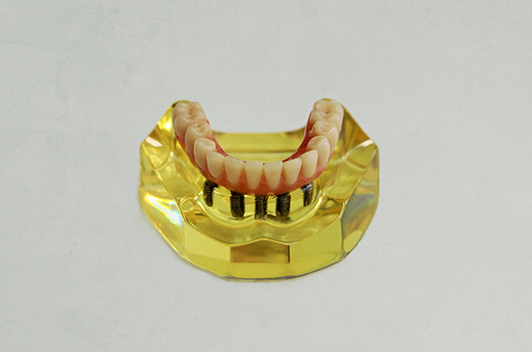 Implante dentário na Vila Medeiros SP
