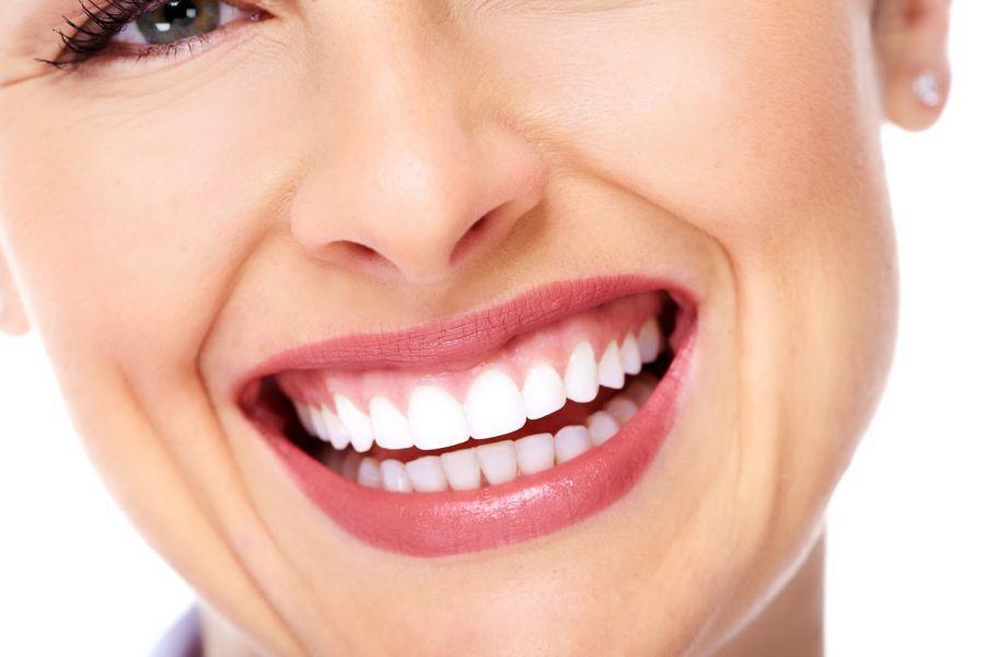 Facetas dentais na Zona Norte de SP