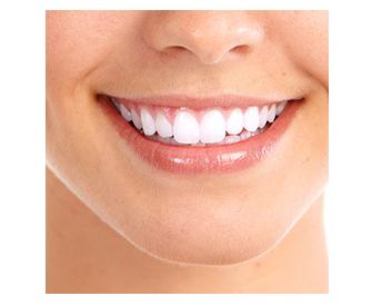 Dentista na Zona Norte SP Estética Dental