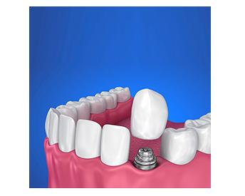 Dentista na Zona Norte SP Implante Dentário