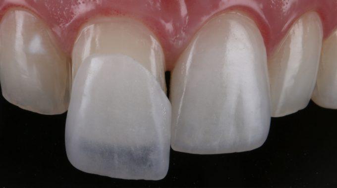 Procedimentos de estética dental na Zona Norte de SP