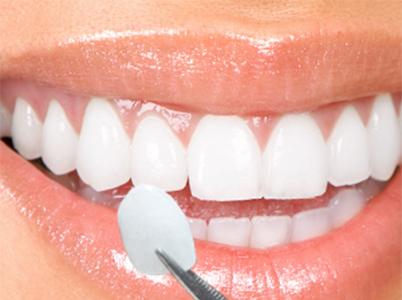 Lentes de contato dental na Zona Norte de SP