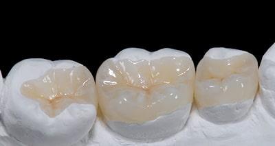 Clareamento dental na Zona Norte de SP
